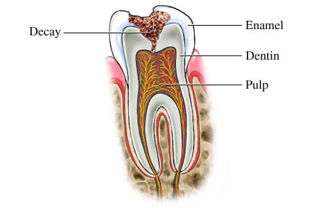 Tooth Dental Decay Diagram
